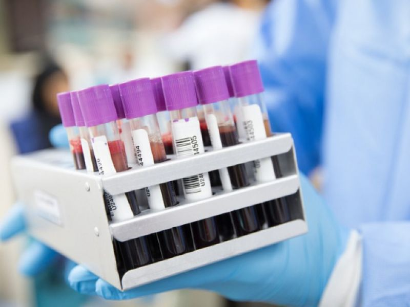 Pesquisa vai utilizar plasma sanguíneo em pacientes infectados com Covid-19