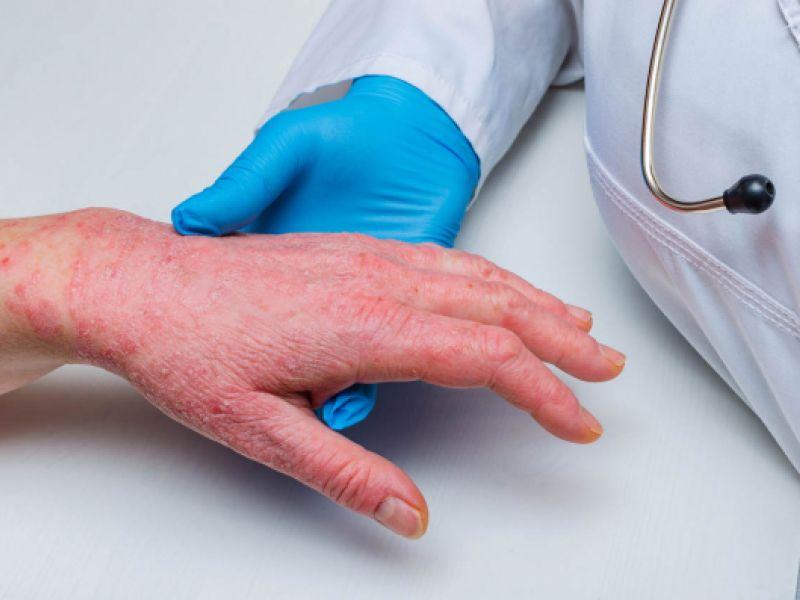 Estresse provoca doenças de pele