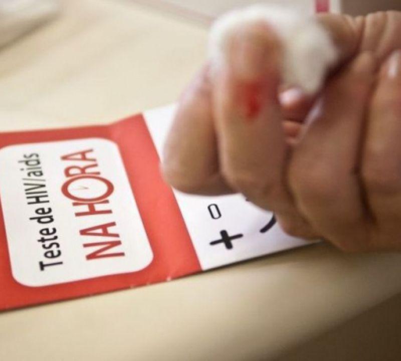 Cai o número de casos e mortes causados pela Aids em todo o país