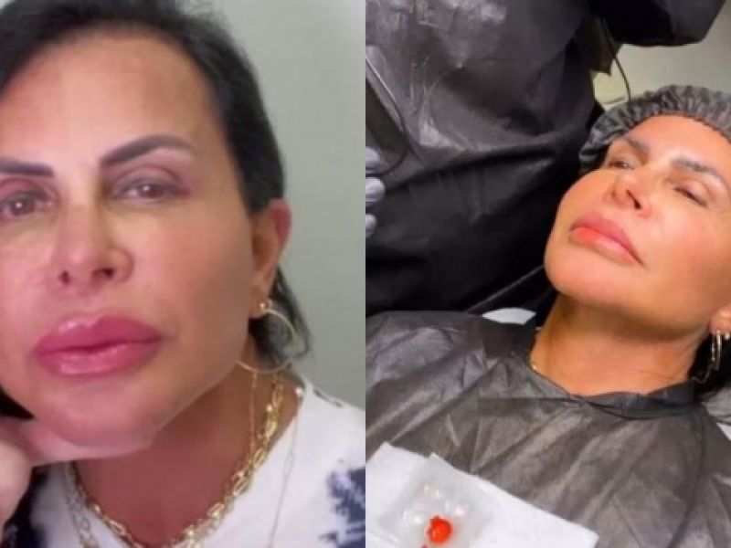 Gretchen exibe resultado de novos procedimentos estéticos no rosto